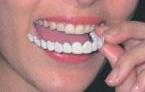 歯を削らない痛くない短期審美歯科治療用マウスピース東京写真