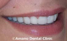 削らない痛くない短期審美歯科治療用マウスピース東京治療後4