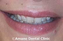 削らない痛くない短期審美歯科治療用マウスピース東京治療前4