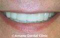 短期審美歯科治療用マウスピース治療後