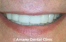 削らない痛くない短期審美歯科治療用マウスピース東京治療後1