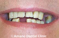 短期審美歯科治療用マウスピース治療前