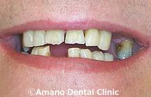 削らない痛くない短期審美歯科治療用マウスピース東京治療前1