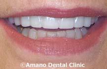 削らない痛くない短期審美歯科治療用マウスピース東京治療後3