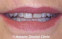 削らない痛くない短期審美歯科治療用マウスピース東京治療前3