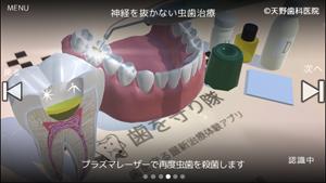 歯を削らない神経を抜かない治療/最新歯科治療アプリ写真