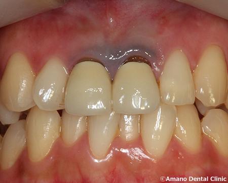 歯茎が黒い差し歯の治療前