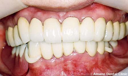 顎関節症の治療後55歳女性入れ歯