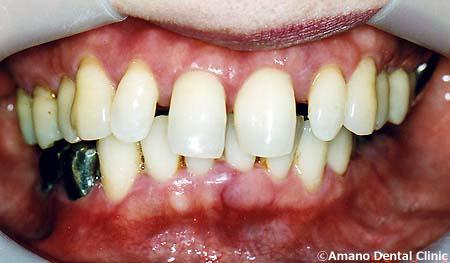 顎関節症の治療前55歳女性