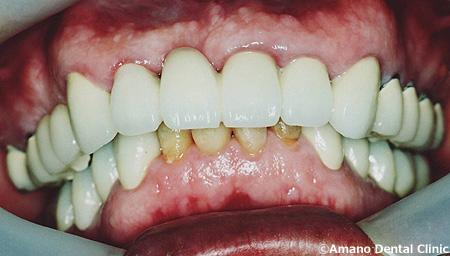 顎関節症の治療後70歳男性