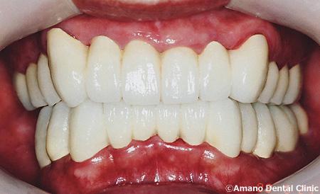 顎関節症の治療後tm