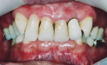 顎関節症の治療前tm