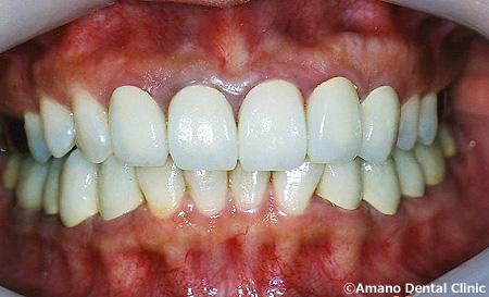顎関節症の治療後hs