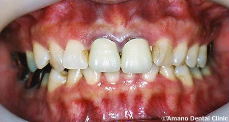 顎関節症の治療前hs