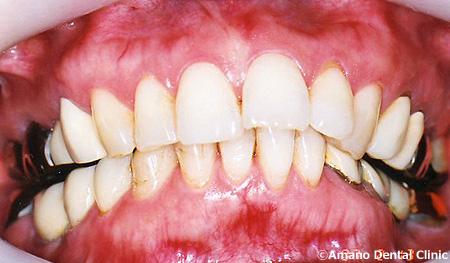 顎関節症の治療前jw