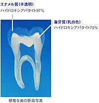 歯のエナメル質修復歯磨きアパガードリナメル断面)