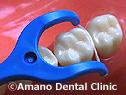 奥歯用デンタルフロス販売購入通販使用法