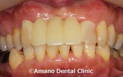 ポリプロピレンの入れ歯治療後