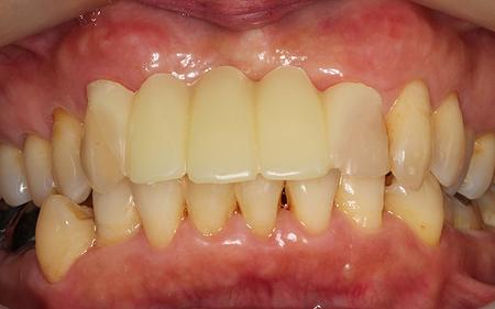 歯を削らないブリッジ ウェルデンツ治療後