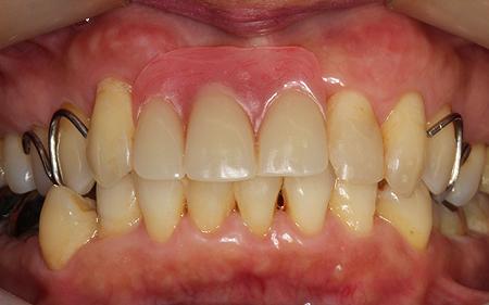 歯を削らないブリッジ治療中