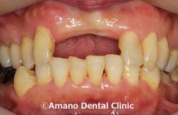 歯を削らないブリッジ治療前