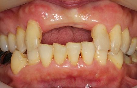 治療前 入れ歯を外した状態