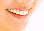 審美歯科トラブル失敗の治療写真1