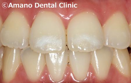 歯の白い斑点(ホワイトスポット)治療エナメル質形成不全治療後3