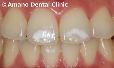 歯の白い斑点(ホワイトスポット)治療エナメル質形成不全治療前3