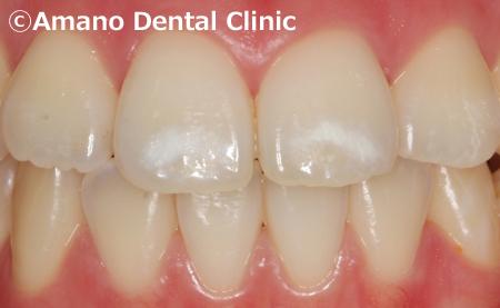 歯の白い斑点(ホワイトスポット)治療エナメル質形成不全治療中