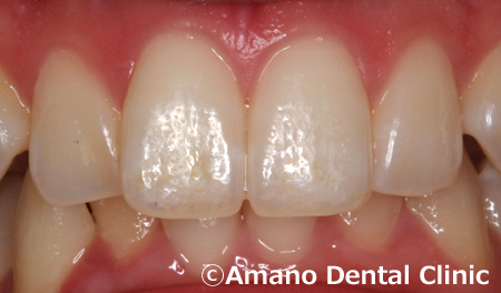 歯を削らないホワイトスポット治療後