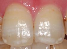 歯の白い斑点(ホワイトスポット)治療エナメル質形成不全治療後1