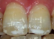 歯の白い斑点(ホワイトスポット)治療エナメル質形成不全治療前1