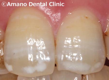 歯を削らないホワイトスポット治療中