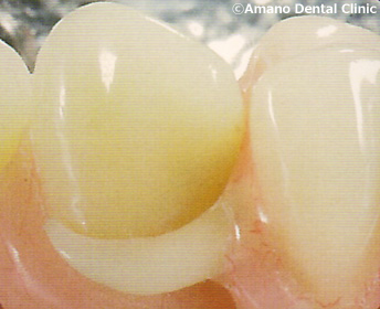 白いバネの入れ歯 (ホワイトクラスプ) 治療前
