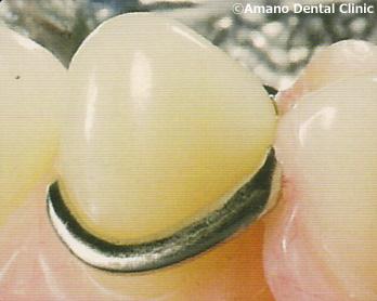 Metal clasp denture