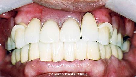 歯槽膿漏の治療法