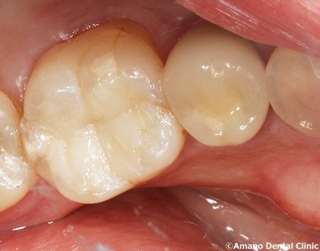 変色しにくいプラスチックの詰め物コンポジットレジン治療後ygyn-6