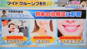 歯の自然再生治療7