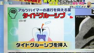 歯の自然再生治療4