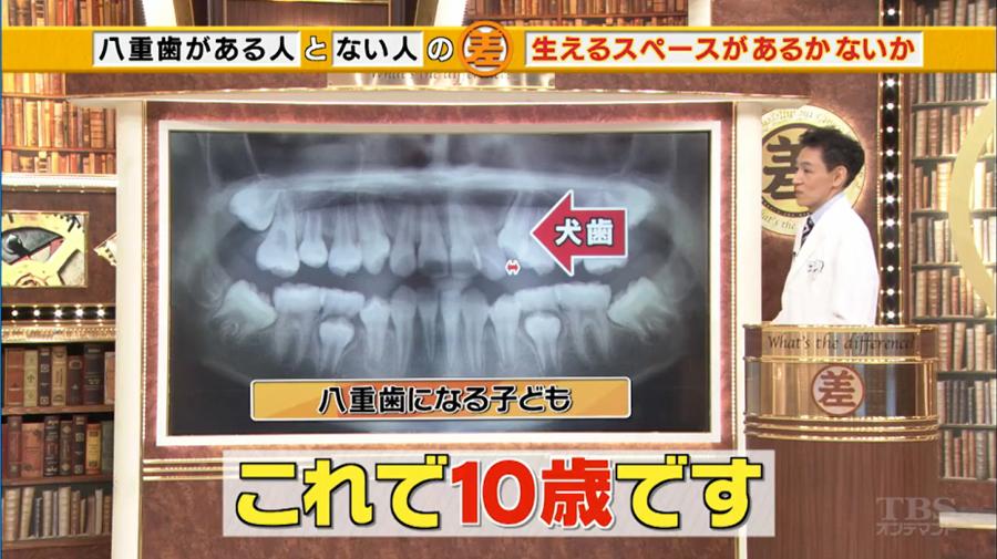 八重歯になる理由2