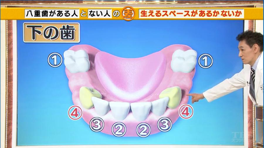 八重歯になる理由3