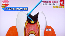 痛くない虫歯治療15