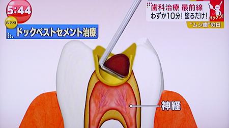 痛くない虫歯治療18
