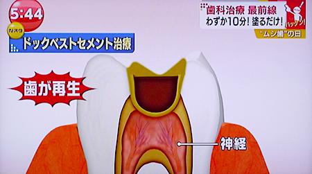 痛くない虫歯治療19