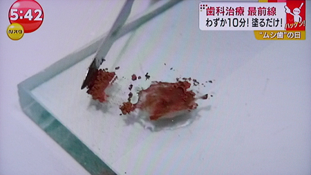 痛くない虫歯治療5