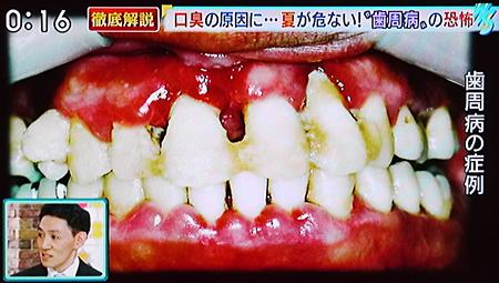 夏バテによる歯周病の原因と予防法11