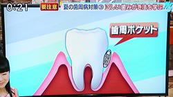 夏バテによる歯周病の原因と予防法15