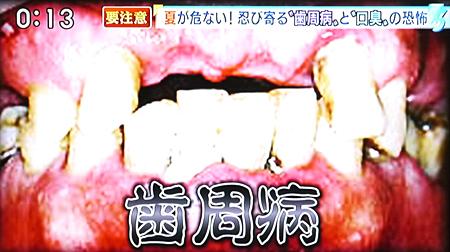 夏バテによる歯周病の原因と予防法3