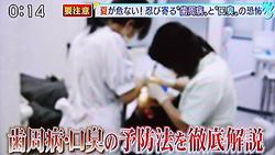 夏バテによる歯周病の原因と予防法5